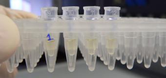 Преимущества бак посева по сравнению с другими методами диагностики инфекций