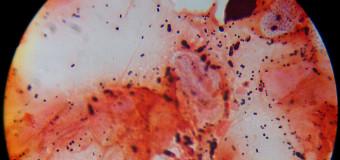 Диагностика Malassezia-инфекций. Микроскопические методы.